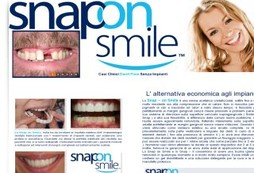 Snap on Smile denti fissi senza impianti